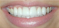 veneers dallas after
