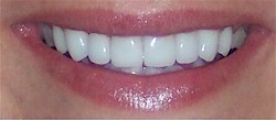 after veneers dallas