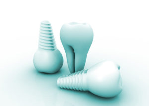 dental implants North Dallas